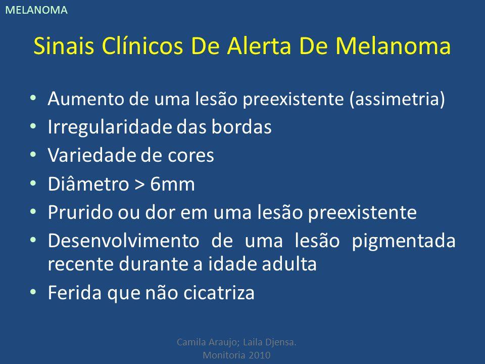Sinais Clínicos De Alerta De Melanoma