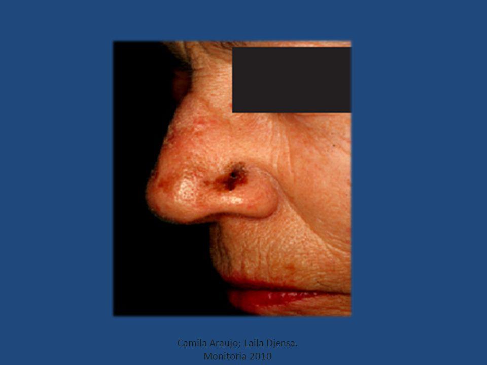 Lentigo melanoma