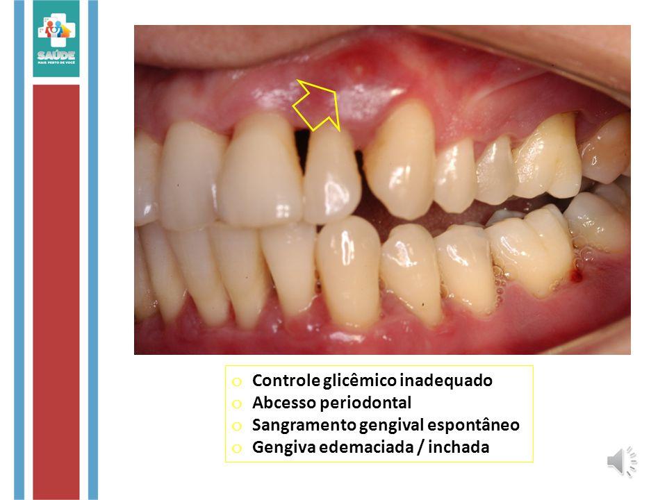 Controle glicêmico inadequado