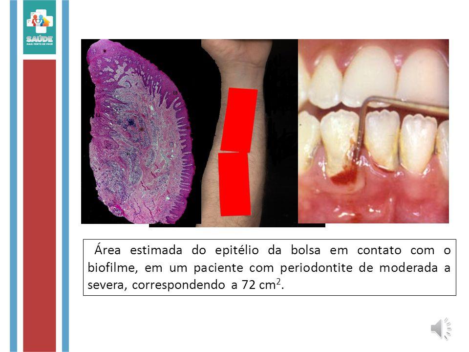 Área estimada do epitélio da bolsa em contato com o biofilme, em um paciente com periodontite de moderada a severa, correspondendo a 72 cm2.