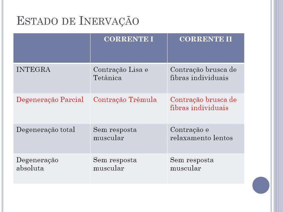 Estado de Inervação CORRENTE I CORRENTE II INTEGRA