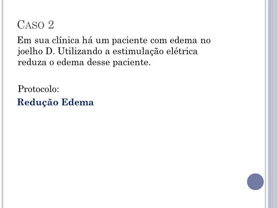 Caso 2 Em sua clínica há um paciente com edema no joelho D. Utilizando a estimulação elétrica reduza o edema desse paciente.