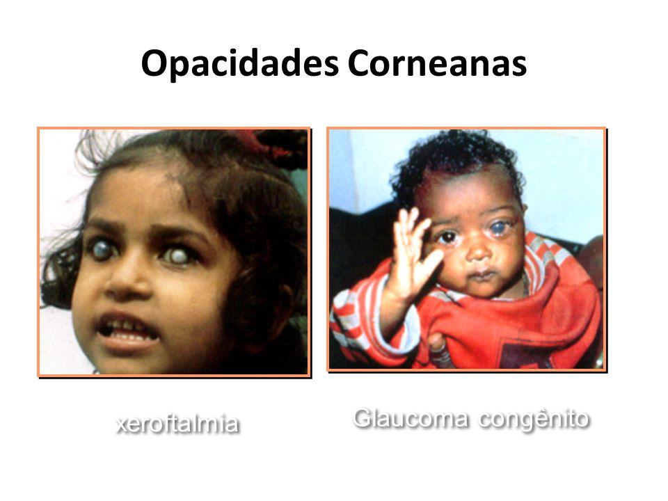 Opacidades Corneanas Glaucoma congênito xeroftalmia