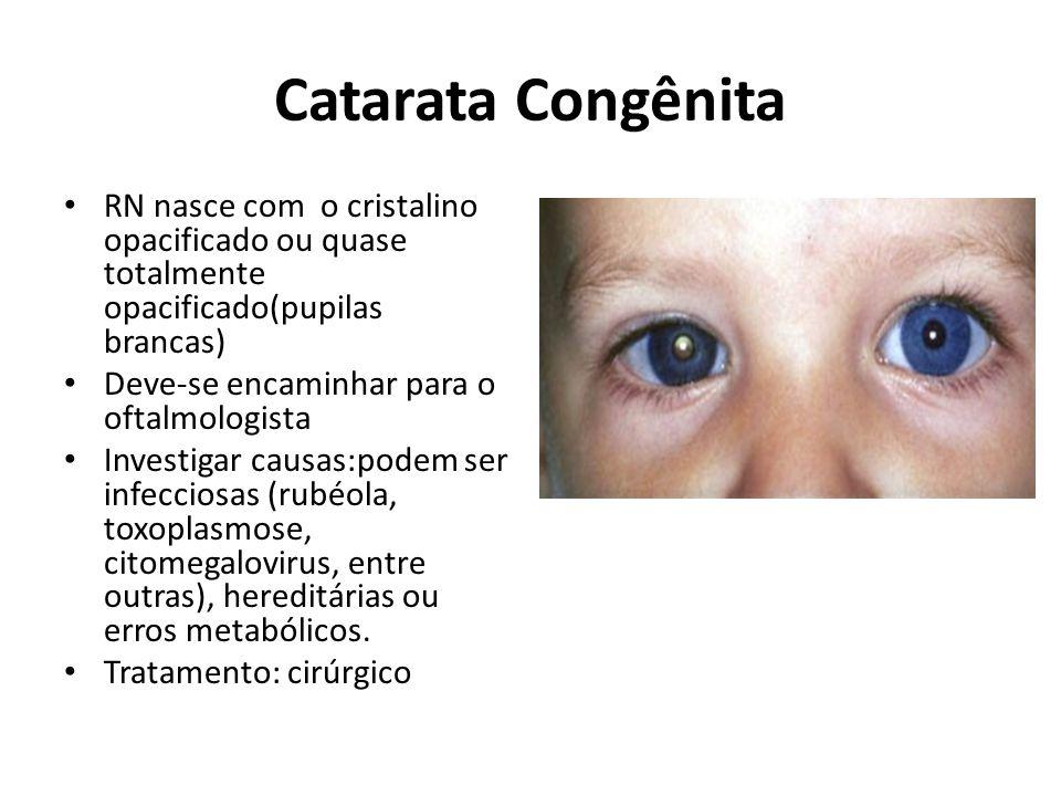 Catarata Congênita RN nasce com o cristalino opacificado ou quase totalmente opacificado(pupilas brancas)