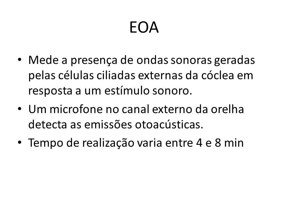EOA Mede a presença de ondas sonoras geradas pelas células ciliadas externas da cóclea em resposta a um estímulo sonoro.