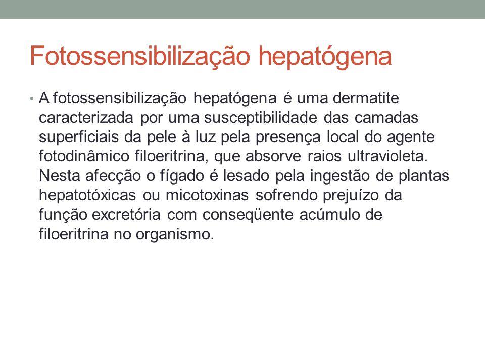 Fotossensibilização hepatógena