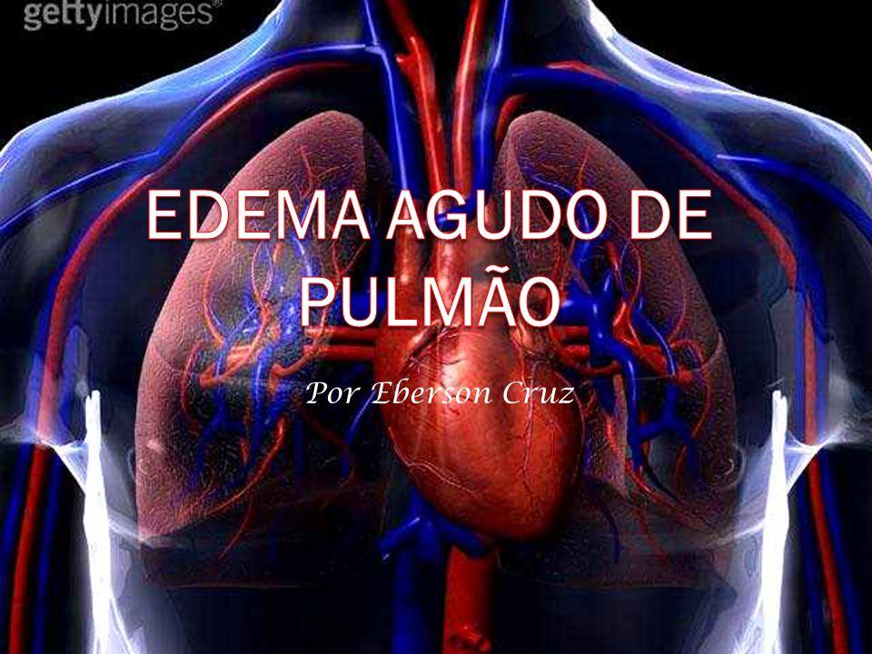 EDEMA AGUDO DE PULMÃO Por Eberson Cruz