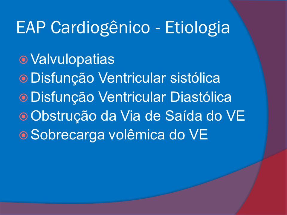 EAP Cardiogênico - Etiologia