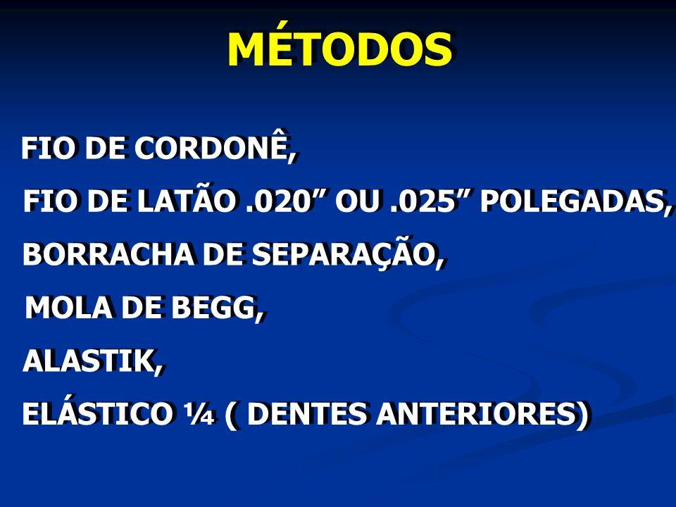 MÉTODOS FIO DE CORDONÊ, FIO DE LATÃO .020 OU .025 POLEGADAS,