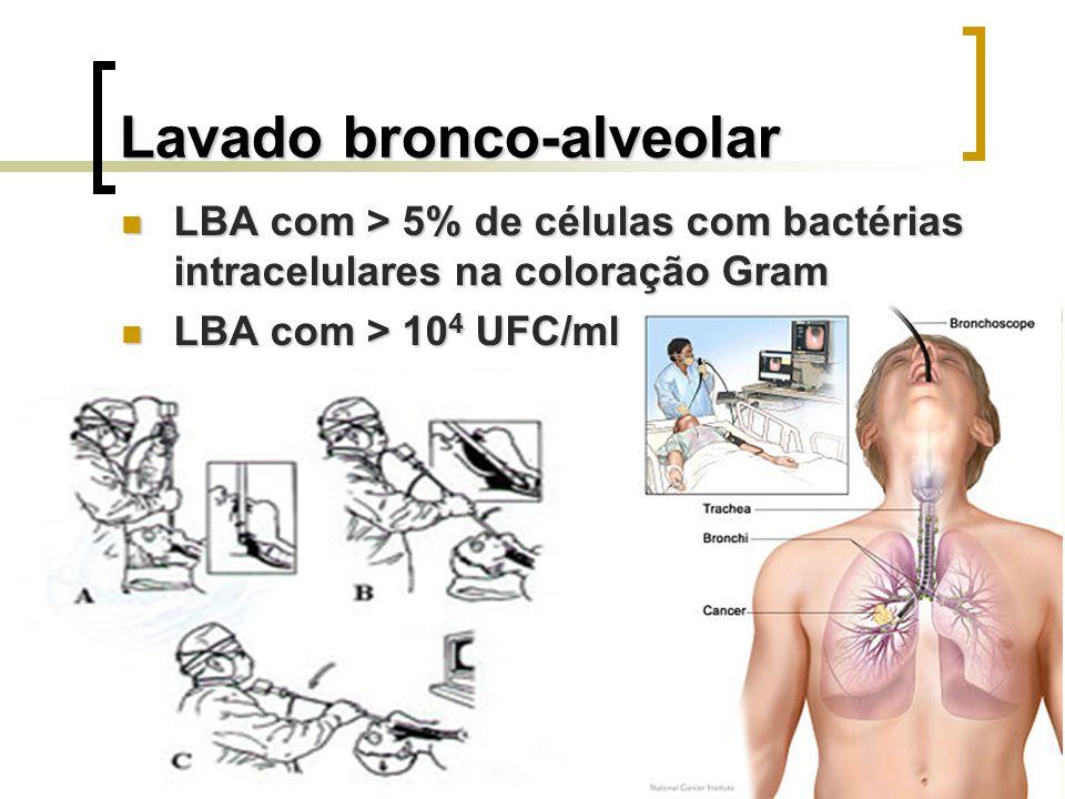 Lavado bronco-alveolar