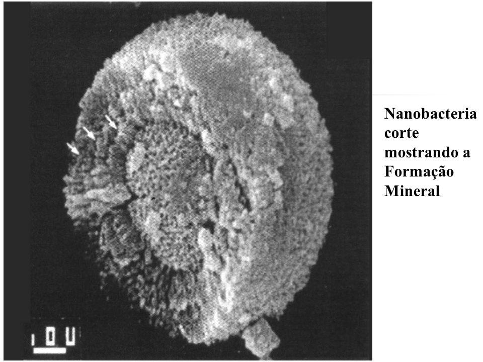 Nanobacteria corte mostrando a Formação Mineral