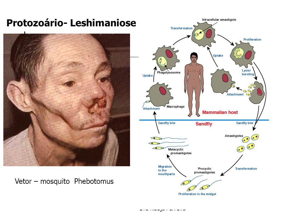 Protozoário- Leshimaniose
