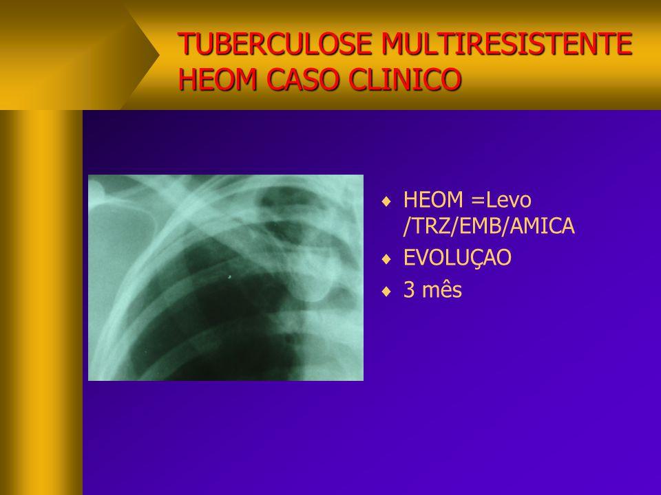 TUBERCULOSE MULTIRESISTENTE HEOM CASO CLINICO
