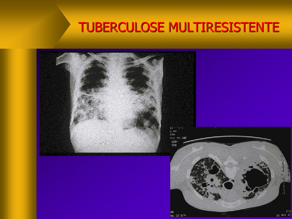 TUBERCULOSE MULTIRESISTENTE