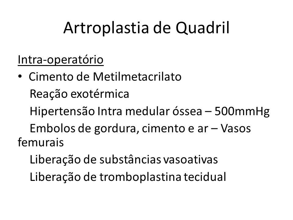 Artroplastia de Quadril
