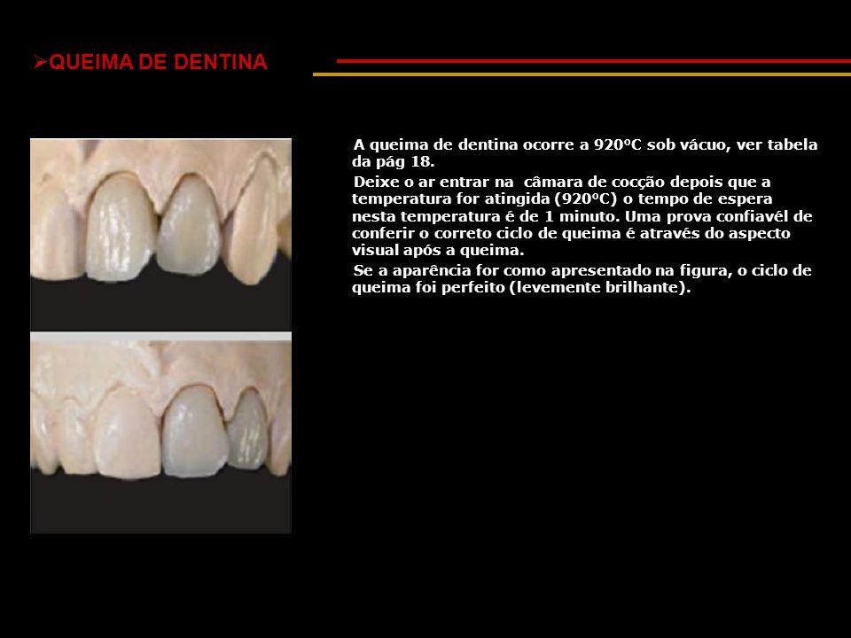 QUEIMA DE DENTINA A queima de dentina ocorre a 920°C sob vácuo, ver tabela da pág 18.