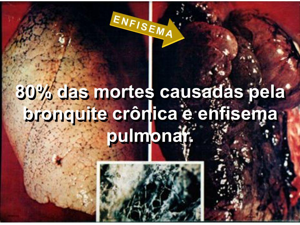 80% das mortes causadas pela bronquite crônica e enfisema pulmonar.