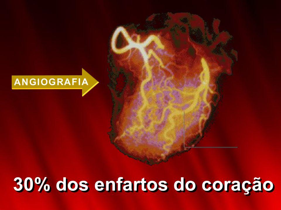 30% dos enfartos do coração