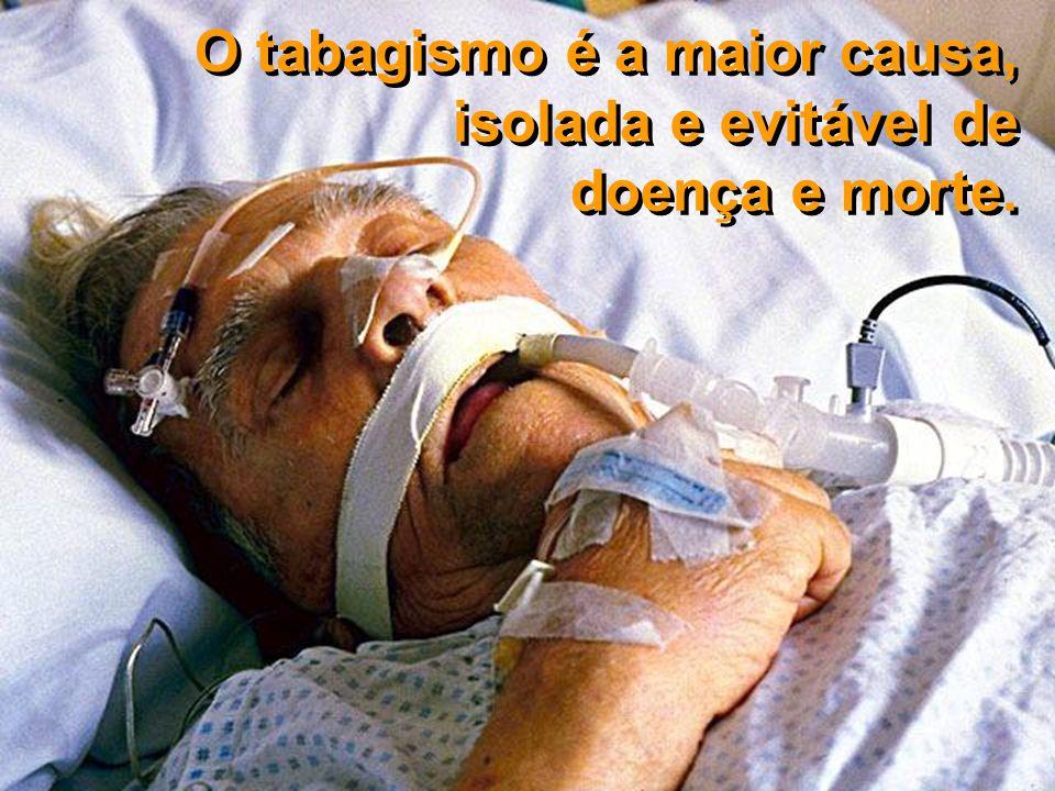 O tabagismo é a maior causa, isolada e evitável de