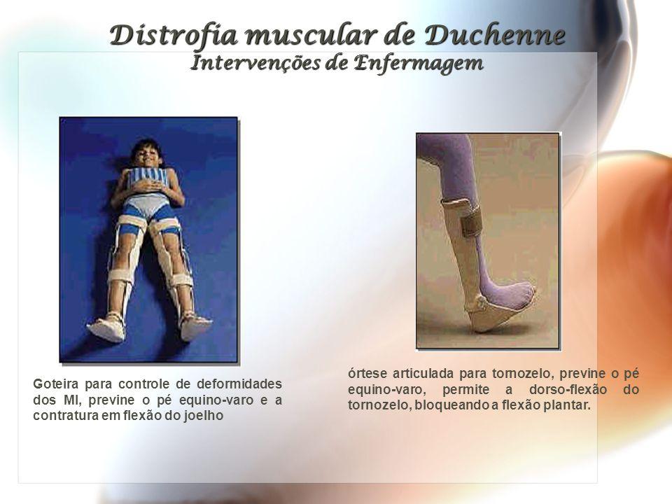 Distrofia muscular de Duchenne Intervenções de Enfermagem