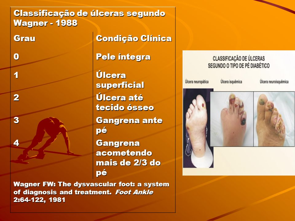 Classificação de úlceras segundo Wagner - 1988