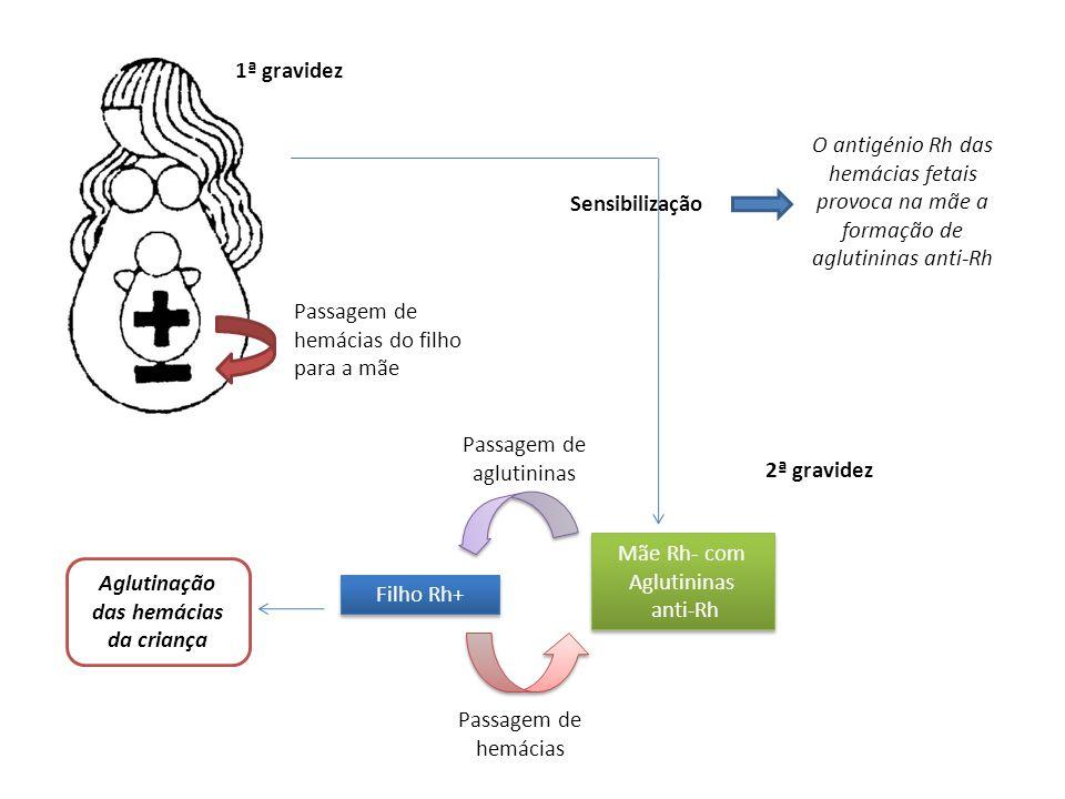 1ª gravidez O antigénio Rh das hemácias fetais provoca na mãe a formação de aglutininas anti-Rh. Sensibilização.