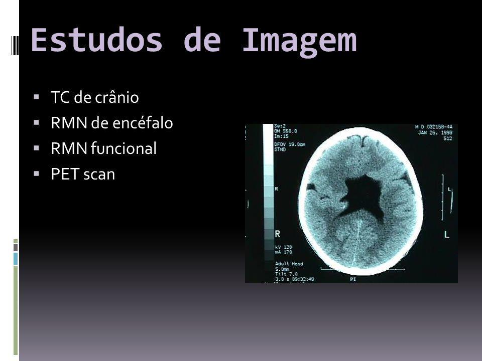 Estudos de Imagem TC de crânio RMN de encéfalo RMN funcional PET scan