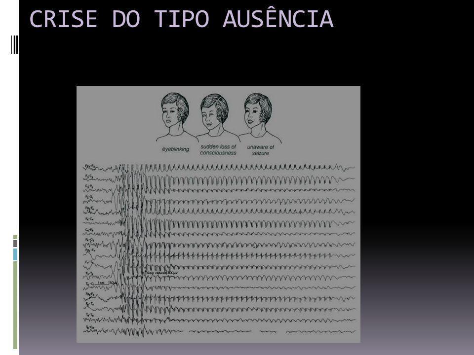 CRISE DO TIPO AUSÊNCIA
