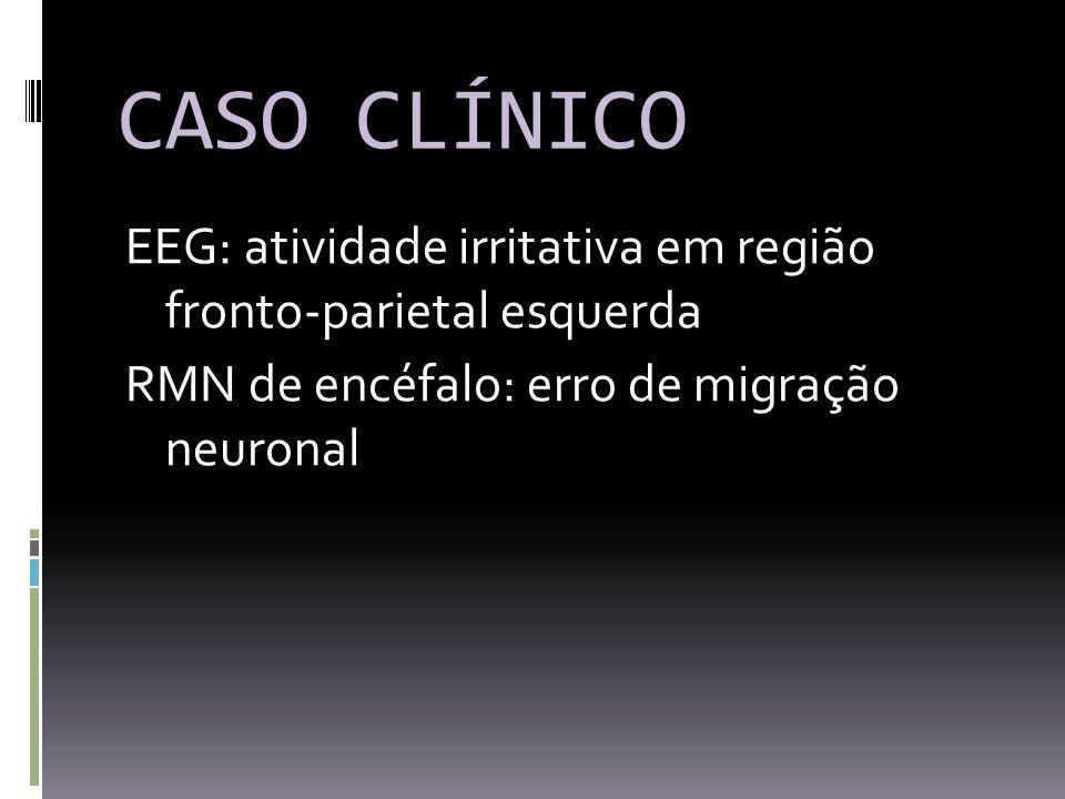 CASO CLÍNICO EEG: atividade irritativa em região fronto-parietal esquerda RMN de encéfalo: erro de migração neuronal