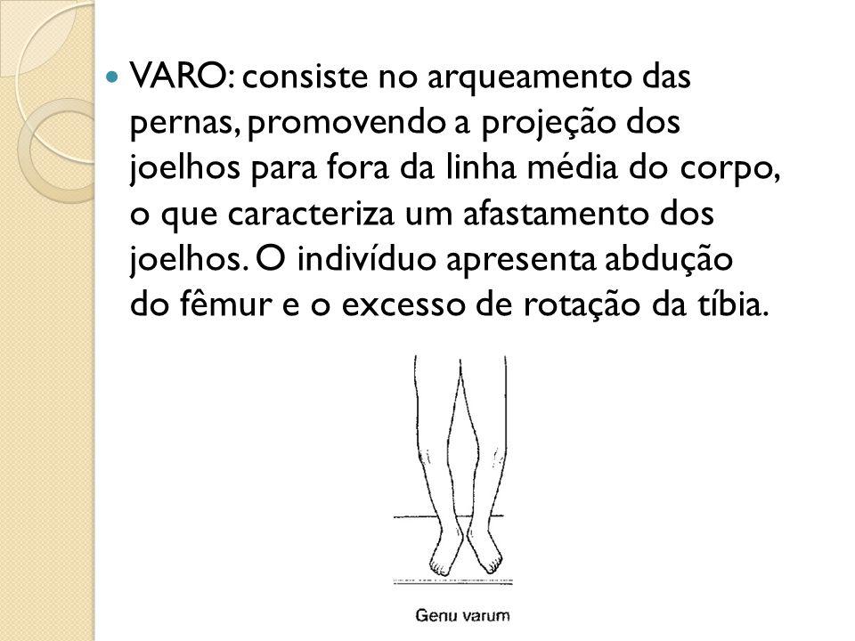 VARO: consiste no arqueamento das pernas, promovendo a projeção dos joelhos para fora da linha média do corpo, o que caracteriza um afastamento dos joelhos.