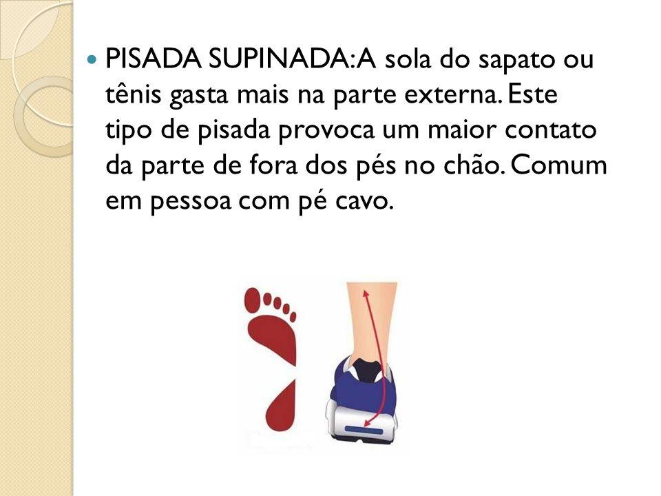 PISADA SUPINADA: A sola do sapato ou tênis gasta mais na parte externa