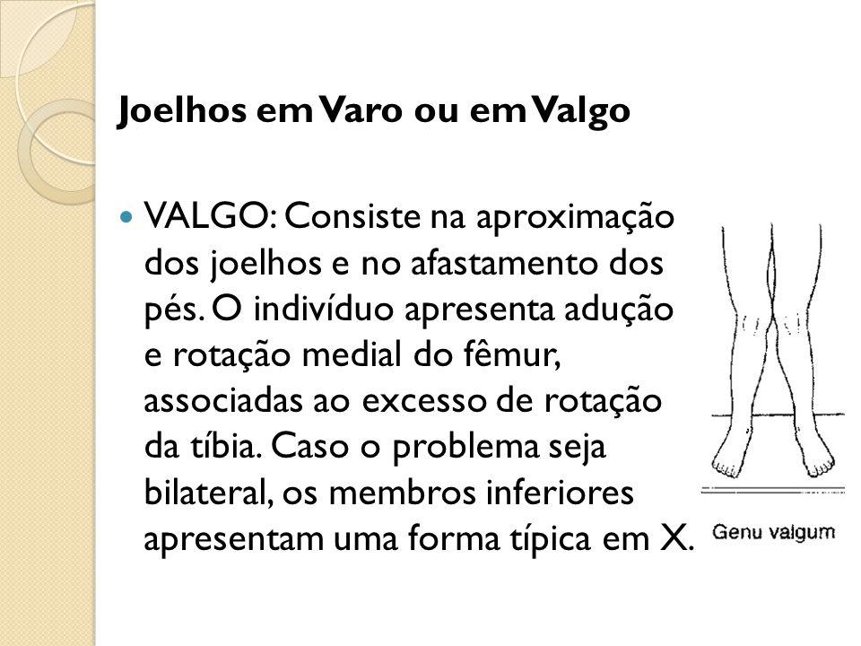 Joelhos em Varo ou em Valgo