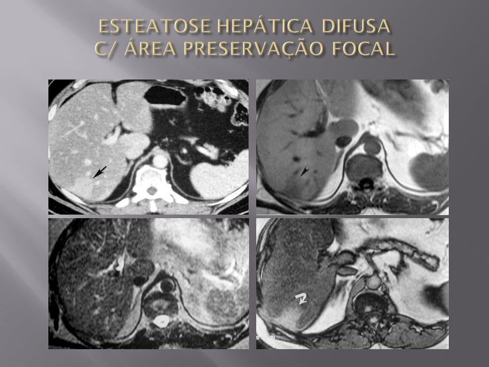 ESTEATOSE HEPÁTICA DIFUSA C/ ÁREA PRESERVAÇÃO FOCAL
