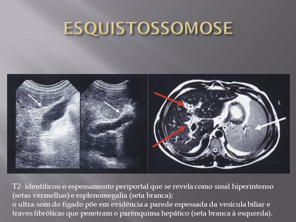ESQUISTOSSOMOSE T2- identificou o espessamento periportal que se revela como sinal hiperintenso (setas vermelhas) e esplenomegalia (seta branca);