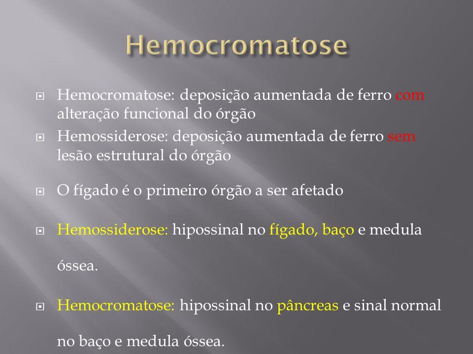 Hemocromatose Hemocromatose: deposição aumentada de ferro com alteração funcional do órgão.
