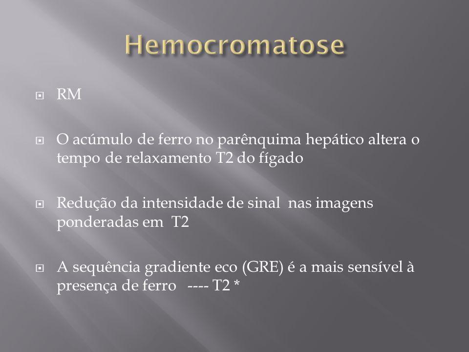 Hemocromatose RM. O acúmulo de ferro no parênquima hepático altera o tempo de relaxamento T2 do fígado.