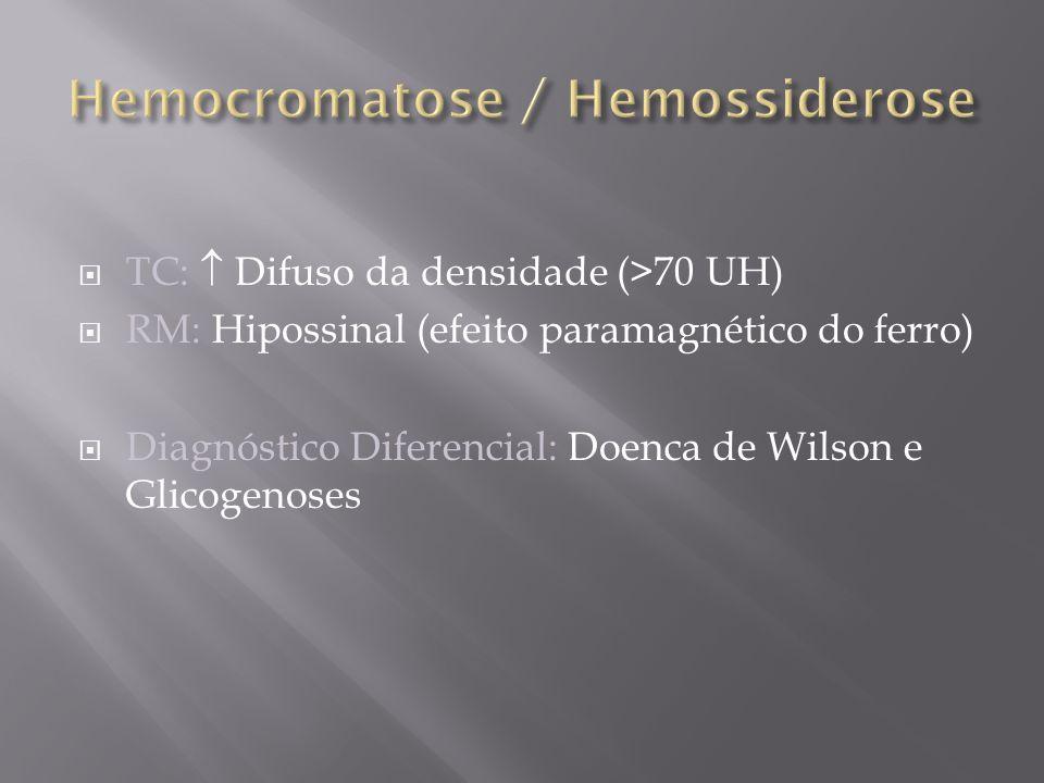 Hemocromatose / Hemossiderose