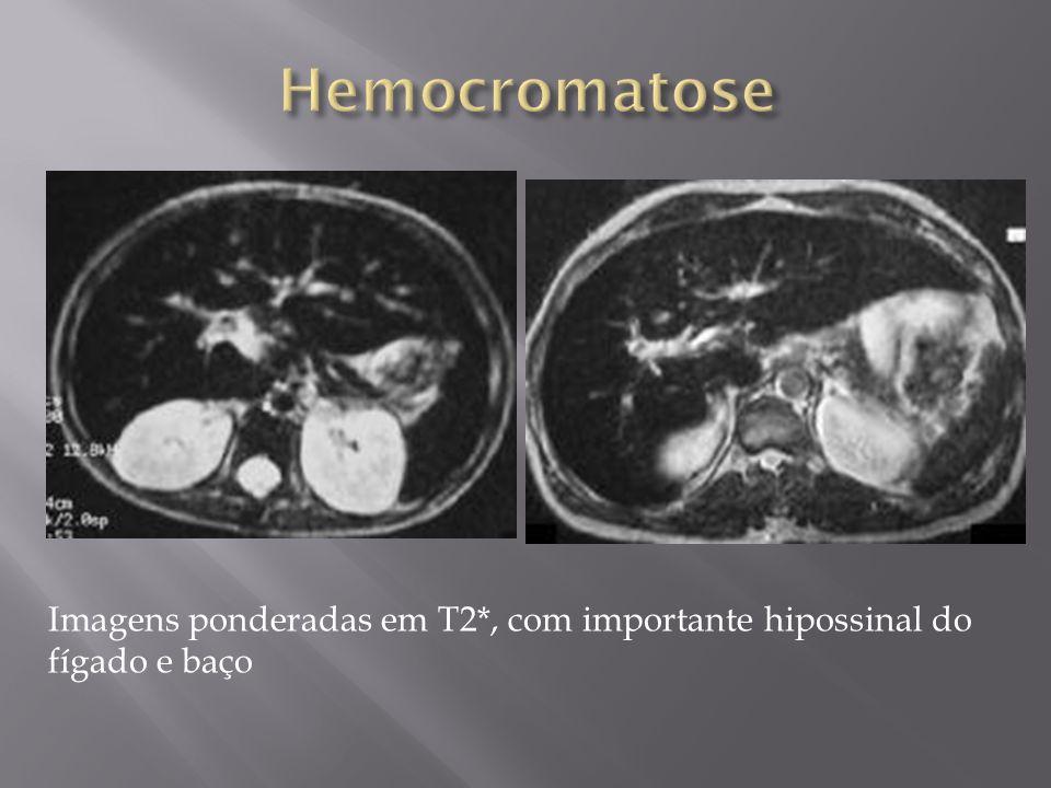 Hemocromatose Imagens ponderadas em T2*, com importante hipossinal do fígado e baço