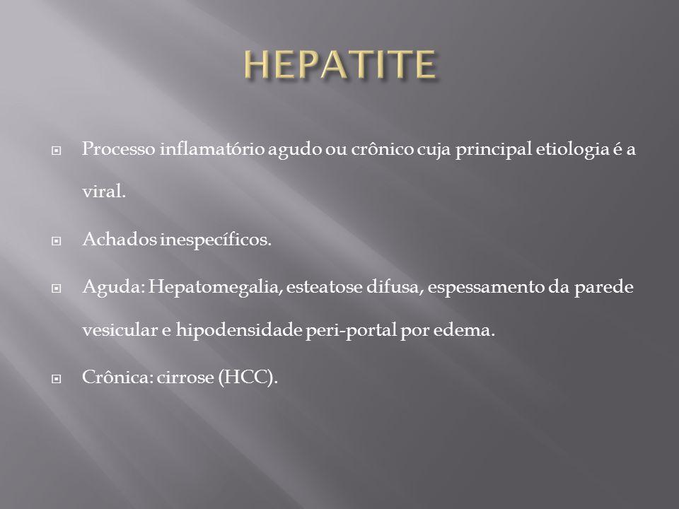 HEPATITE Processo inflamatório agudo ou crônico cuja principal etiologia é a viral. Achados inespecíficos.