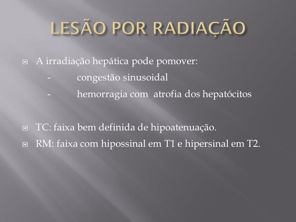 LESÃO POR RADIAÇÃO A irradiação hepática pode pomover: