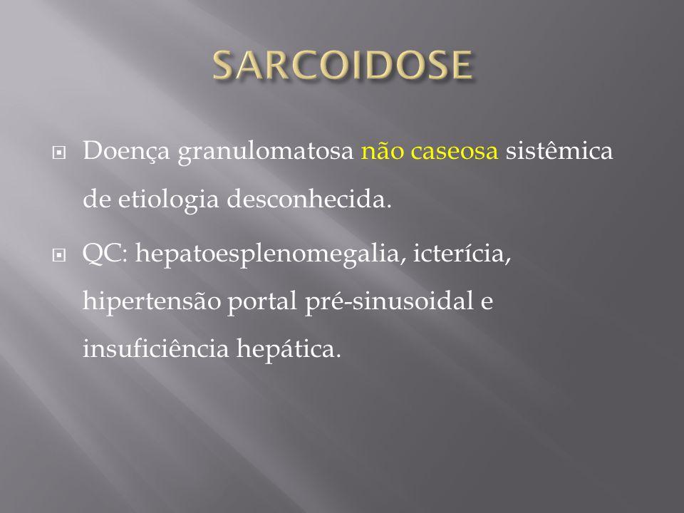 SARCOIDOSE Doença granulomatosa não caseosa sistêmica de etiologia desconhecida.