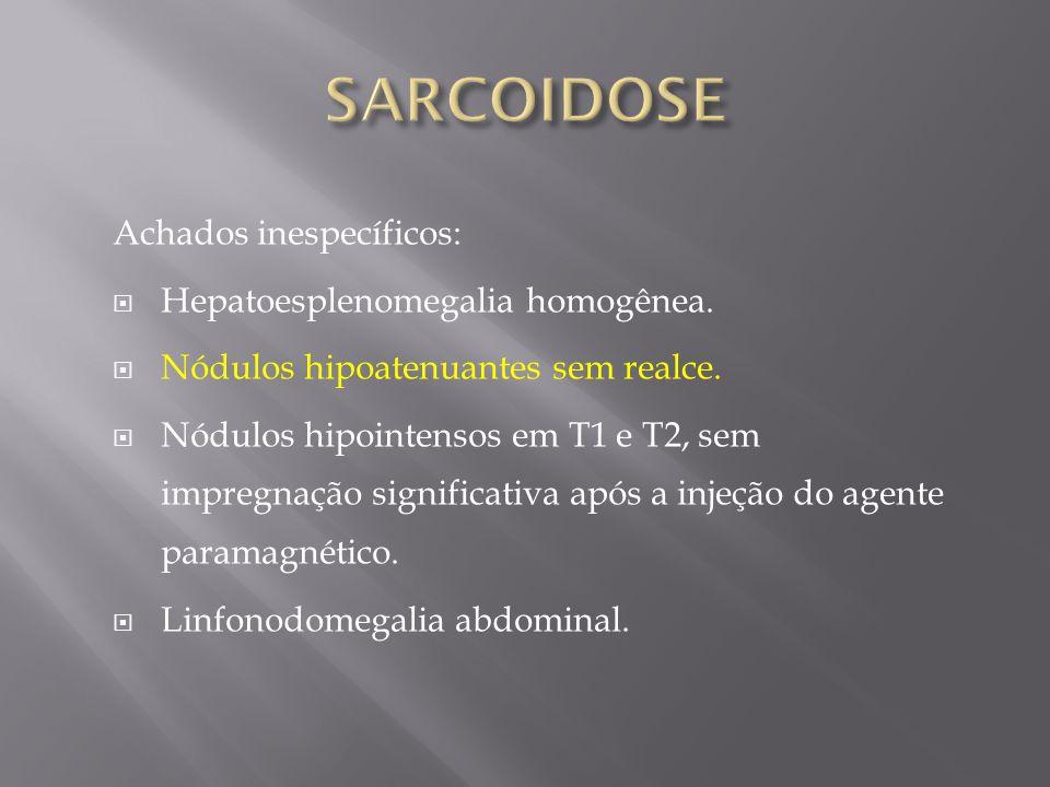 SARCOIDOSE Achados inespecíficos: Hepatoesplenomegalia homogênea.