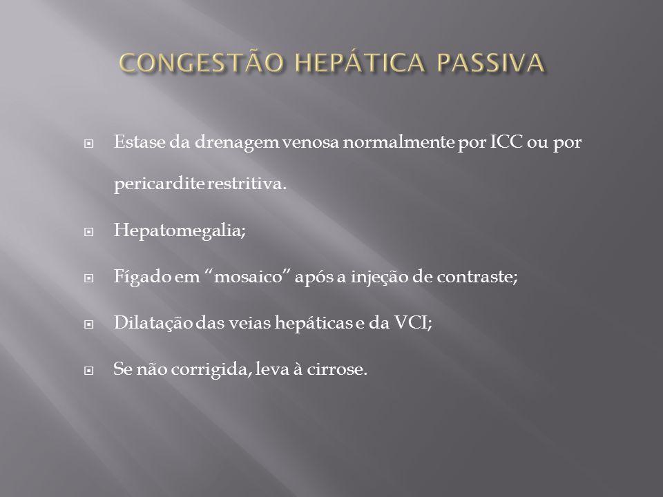CONGESTÃO HEPÁTICA PASSIVA
