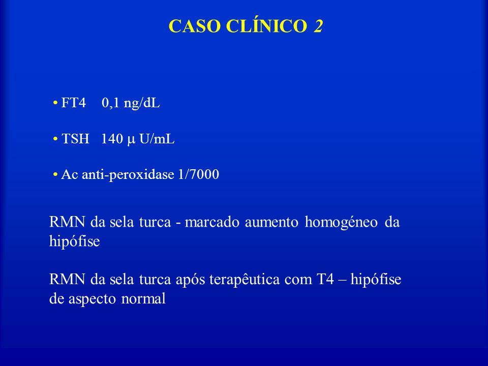 CASO CLÍNICO 2 FT4 0,1 ng/dL. TSH 140  U/mL. Ac anti-peroxidase 1/7000. RMN da sela turca - marcado aumento homogéneo da hipófise.
