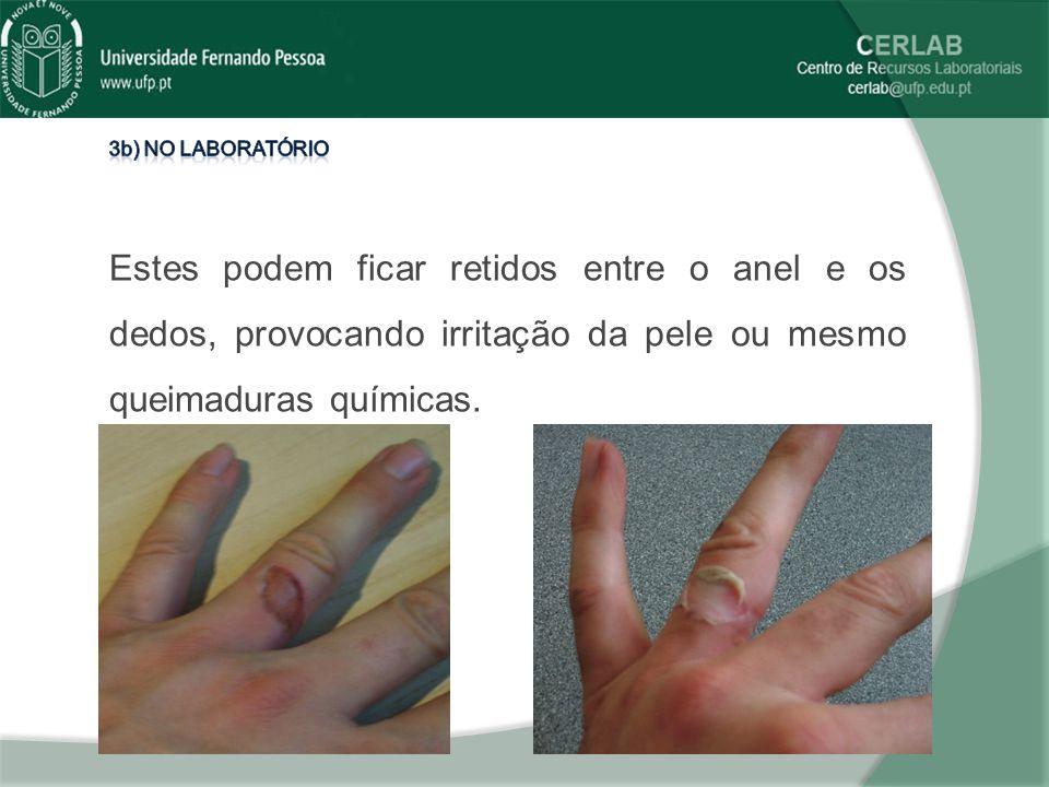 3b) No laboratório Estes podem ficar retidos entre o anel e os dedos, provocando irritação da pele ou mesmo queimaduras químicas.