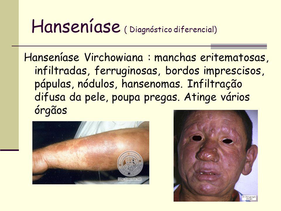 Hanseníase ( Diagnóstico diferencial)