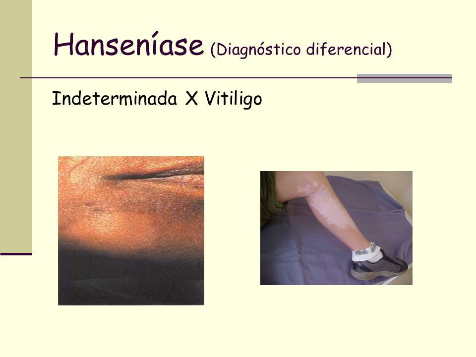 Hanseníase (Diagnóstico diferencial)
