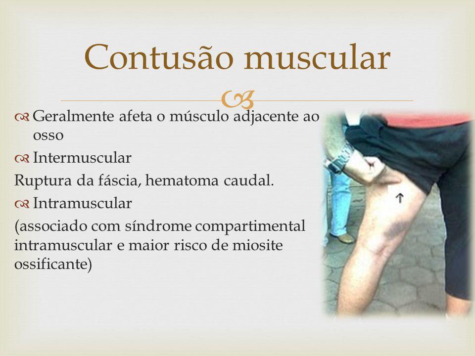 Contusão muscular Geralmente afeta o músculo adjacente ao osso