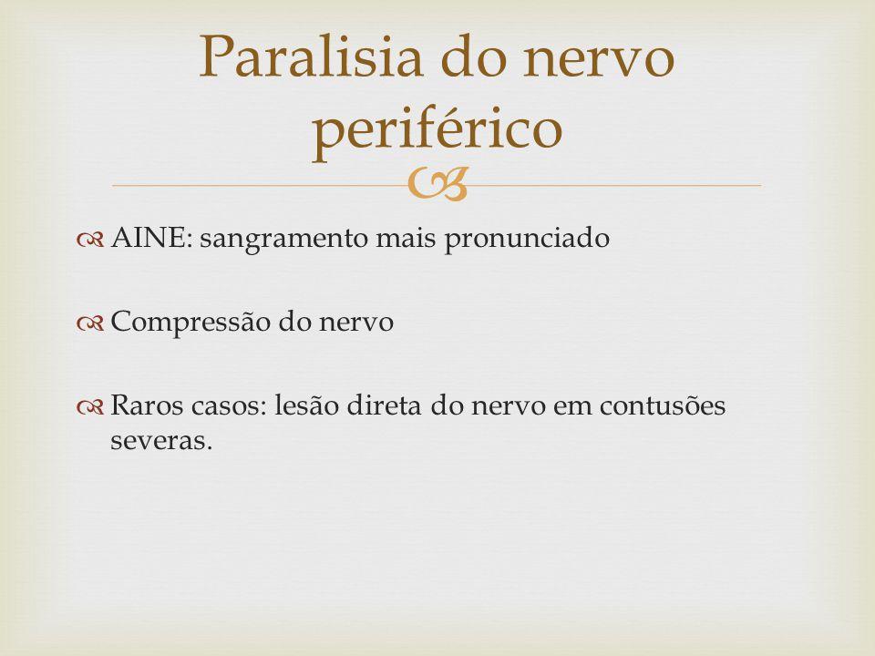 Paralisia do nervo periférico