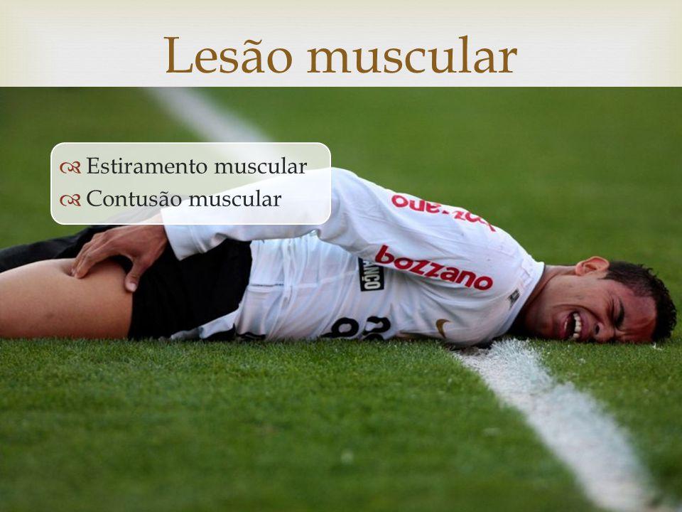 Lesão muscular Estiramento muscular Contusão muscular